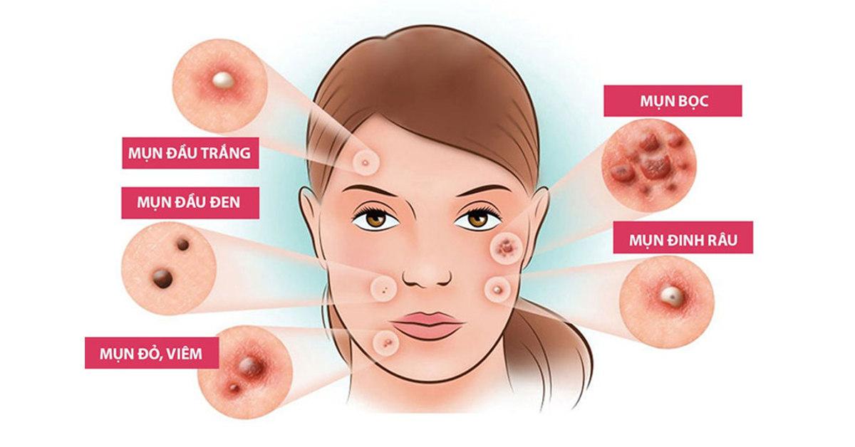 các loại mụn thường gặp trên da